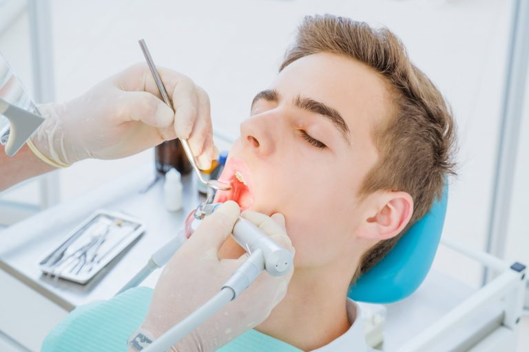 Dental Caries Prevention.teenage Boy At The Dentist's Chair During A Dental Procedure, Smile Close Up. Healthy Smile.