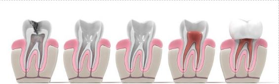 New Root Canals Stock 2