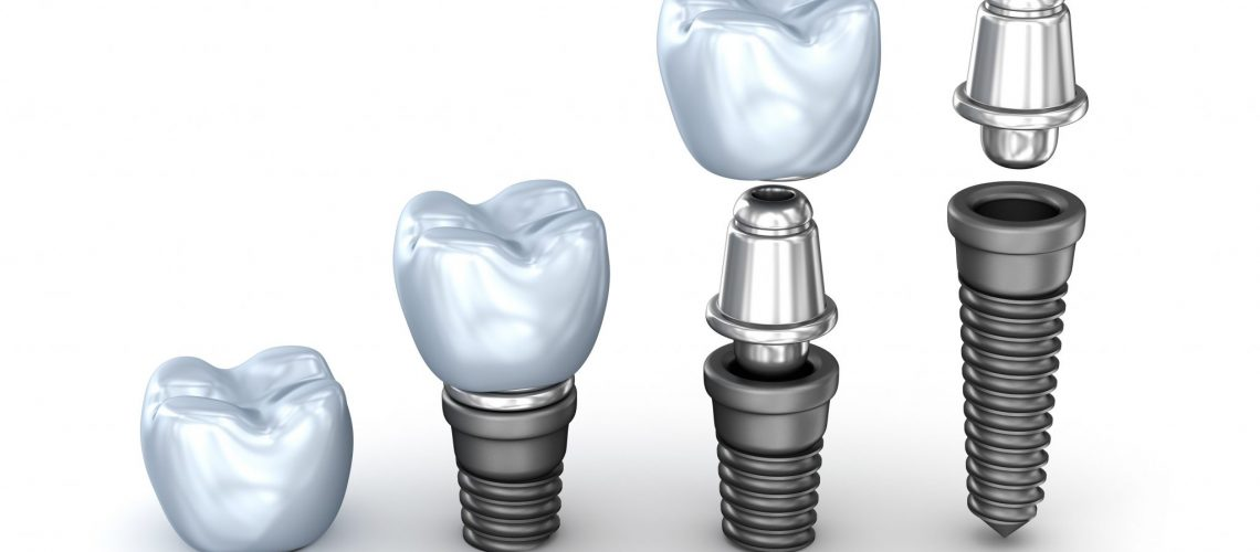 Feature Image 3 Dental Implants