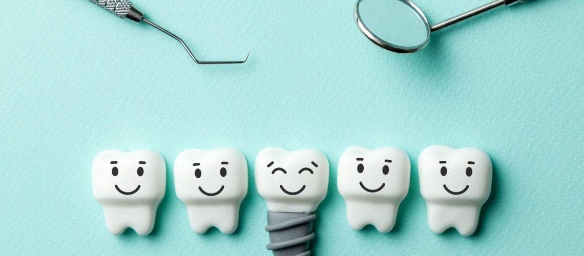 Dental Implant 3